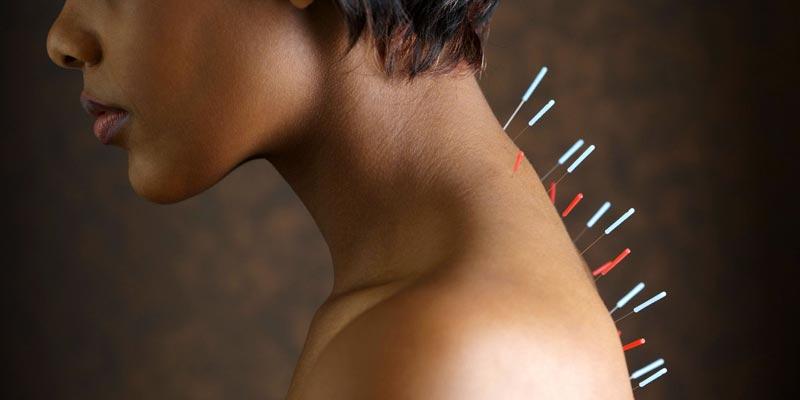 иглоукалывание при остеохондрозе шейного отдела отзывы