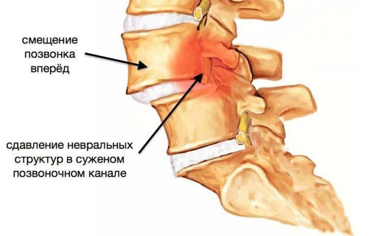 osobennosti-smeshcheniya-pyatogo-pozvonka