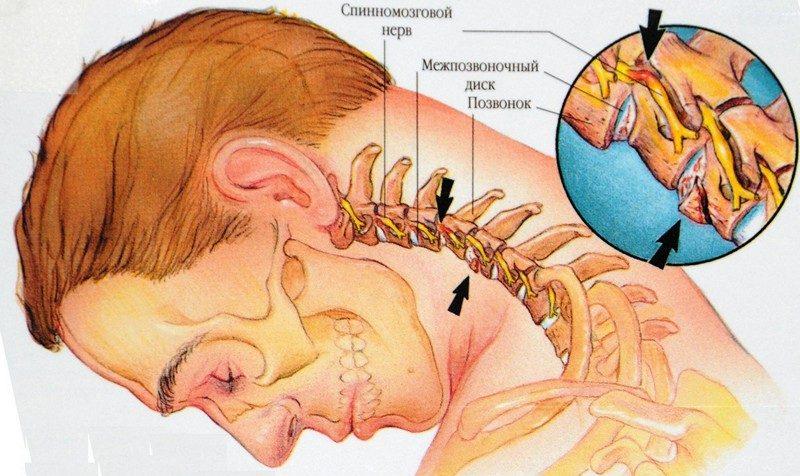 симптомы смещения позвонков
