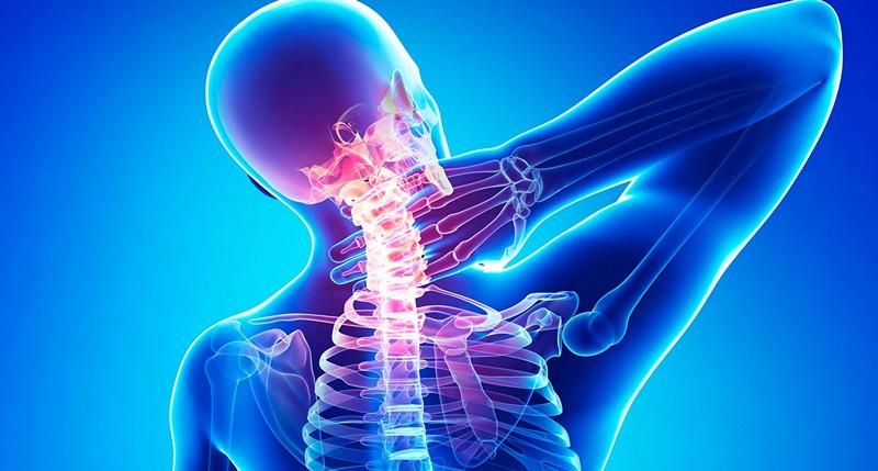 шейный остеохондроз и головная боль