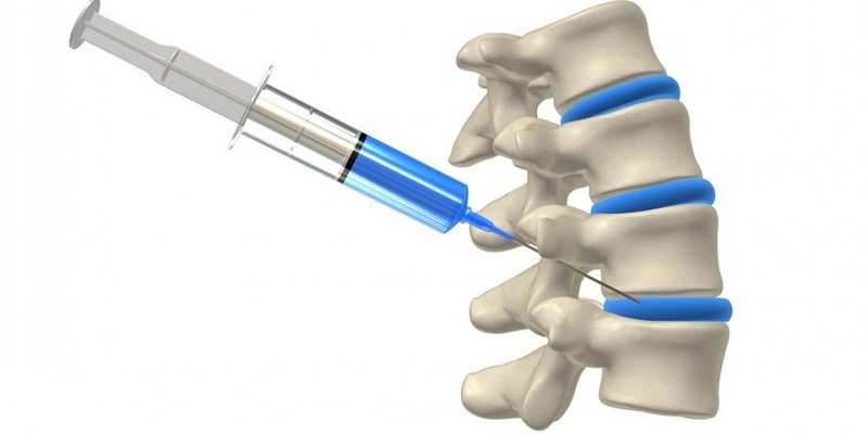 Как проводят блокаду позвоночника при остром болевом синдроме