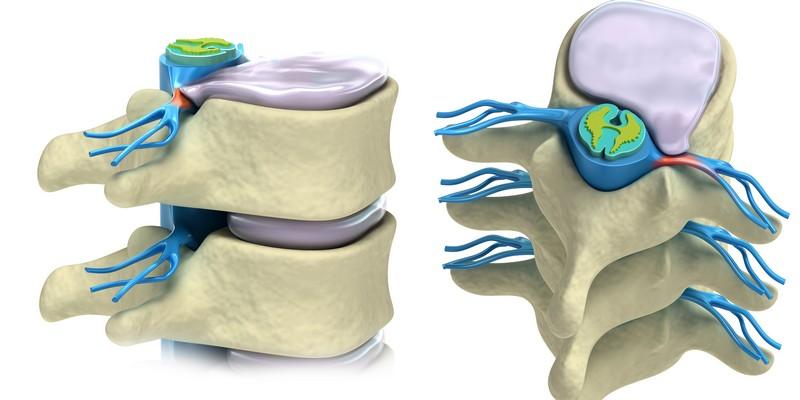 Симптомы и лечение грыжи грудного отдела позвоночника