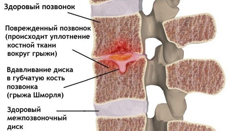 симптомы грыжи шморля