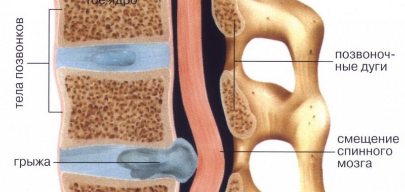 осложнения грыжи шморля