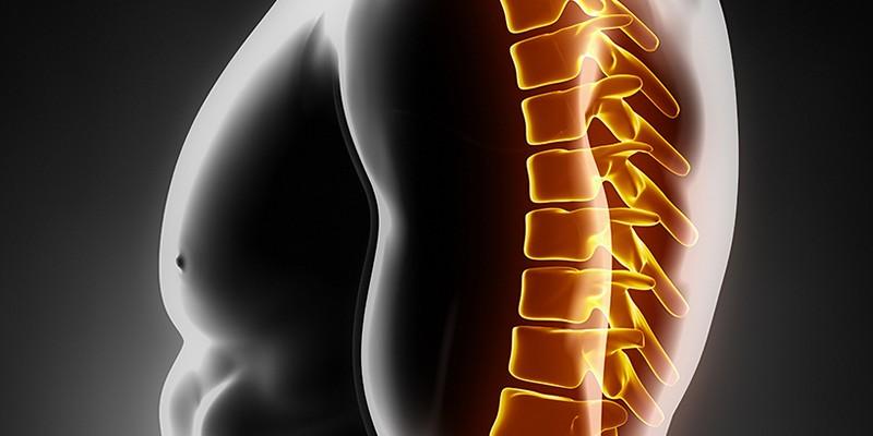 Опоясывающая боль в спине и грудной клетке