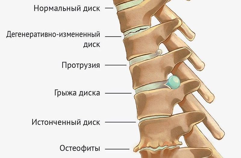 grudnoi-osteohondroz-lechenie