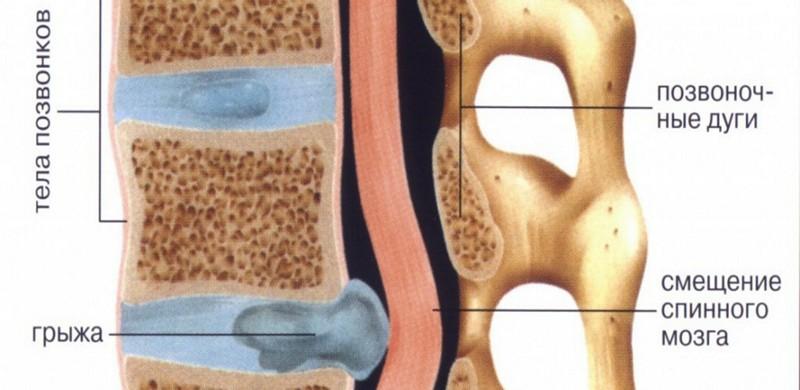 Если болит спина в области лопаток