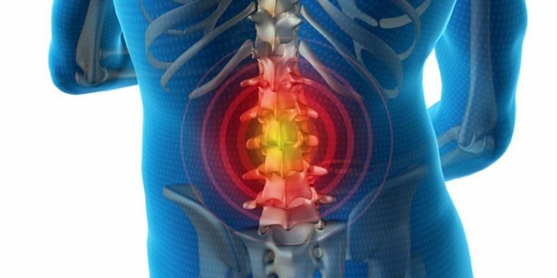 Лечение секвестрированной грыжи позвоночника без операции