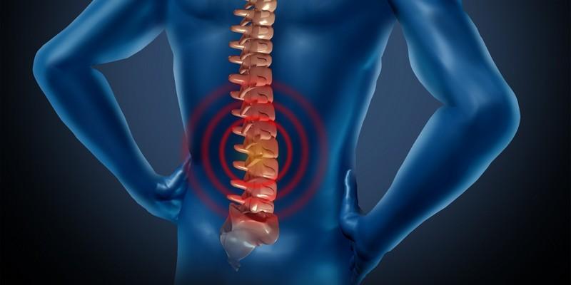 Что такое межпозвонковый остеохондроз и как его лечить