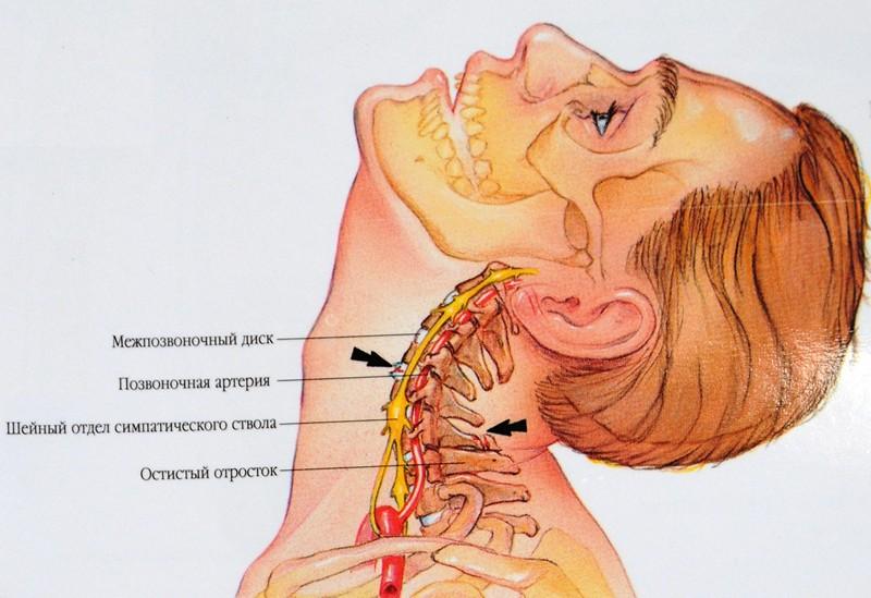 Соли в шейном отделе симптомы