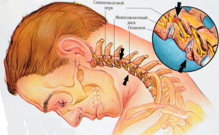 Затылочные нервы и головокружение