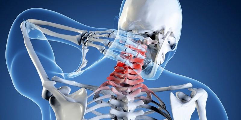 Головные боли при грыже шейного отдела позвоночника