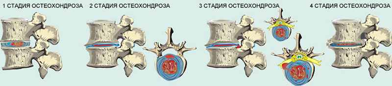 Как обостряется остеохондроз