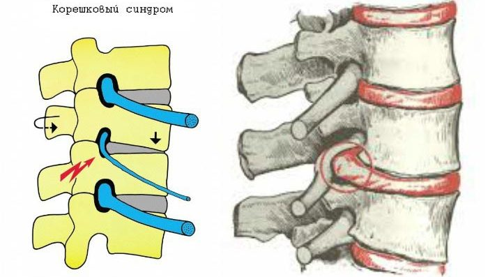 Поясничный остеохондроз что такое как проявляется диагностика лечение