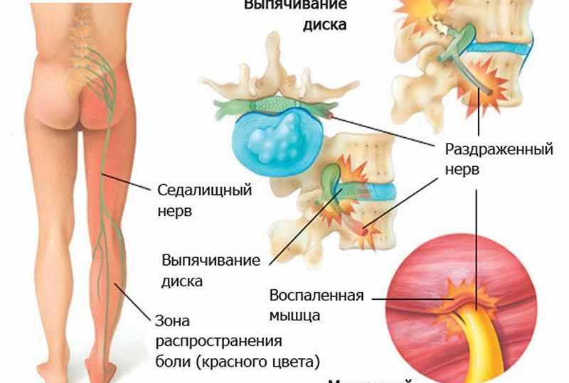 Боль в верхней части грудной клетки на спине