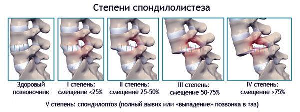 смещение шейных позвонков симптомы