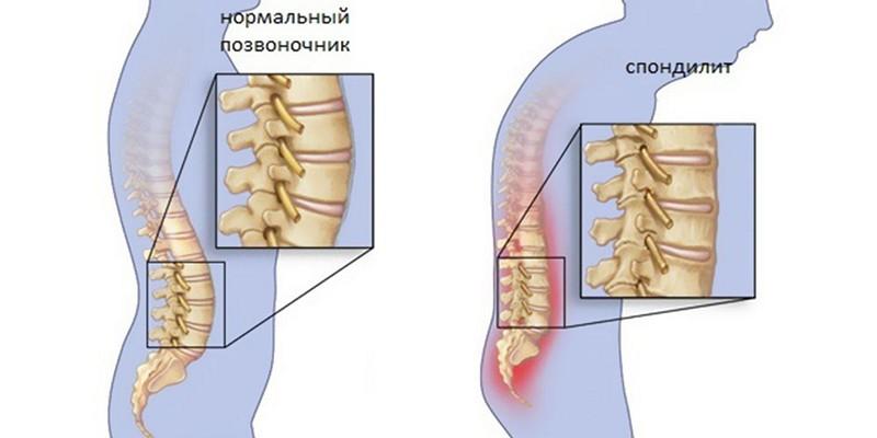 Спондилодисцит позвоночника: что это такое, симптомы, лечение ...
