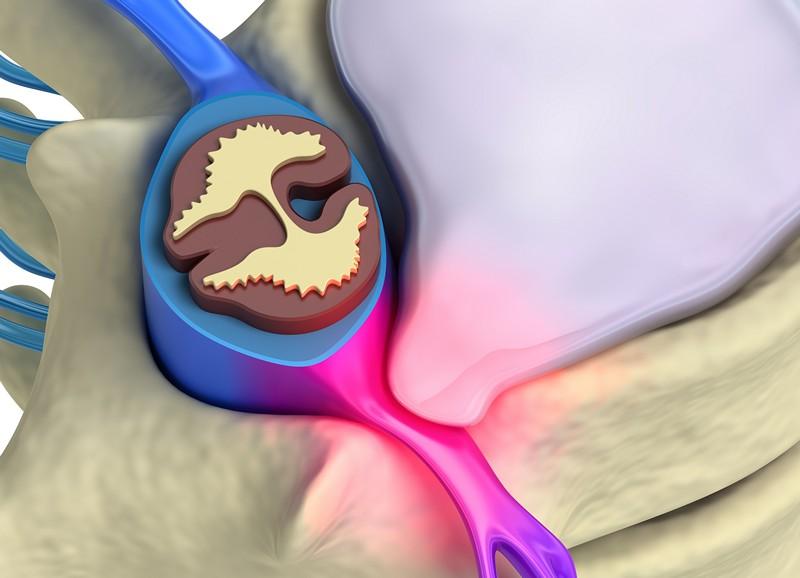 Диффузная протрузия межпозвонкового диска