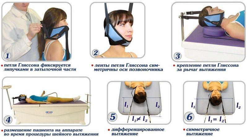 курсы лечения при шейном остеохондрозе