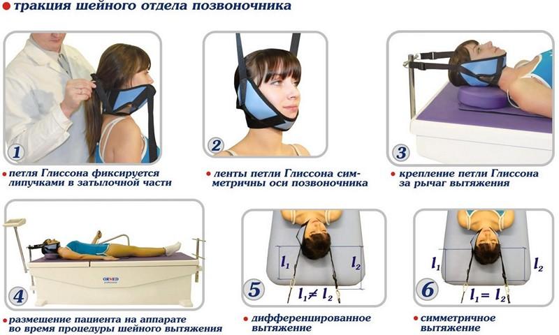 лечение шейного сколиоза