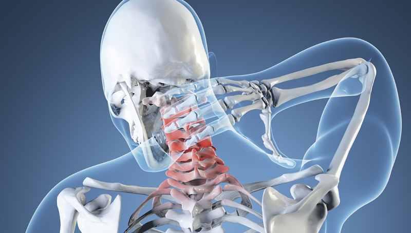 Остеопороз шейного отдела позвоночника
