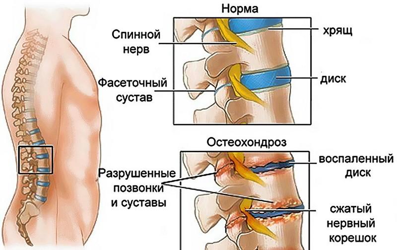 Симптомы и лечение корешкового синдрома поясничного отдела