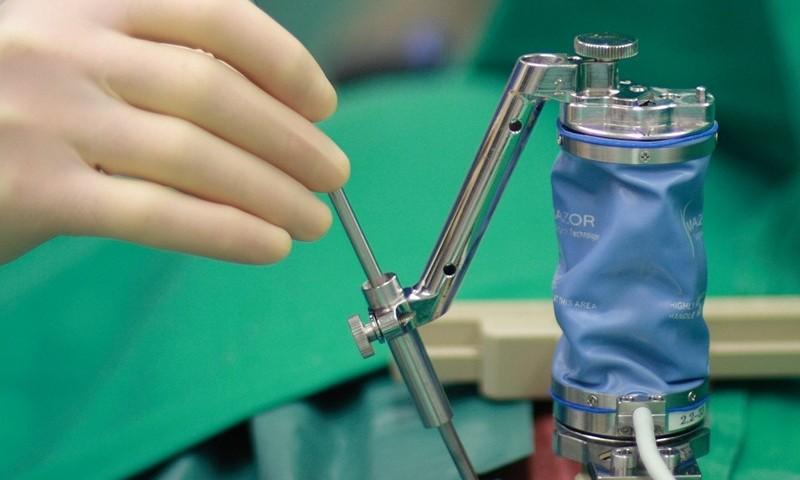 Лечение периневральной кисты