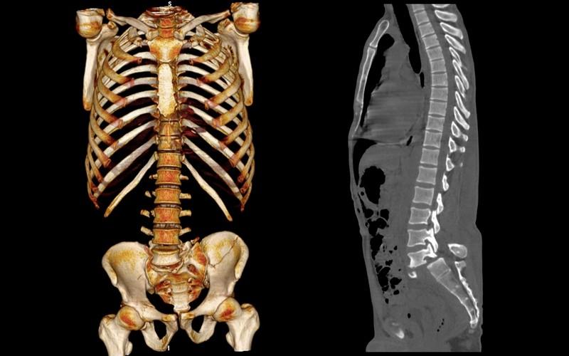 Перелом копчика последствия для мужчин и женщин, лечение, фото