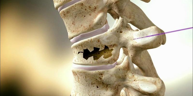 Реабилитация после перелома позвоночника поясничного отдела позвоночника