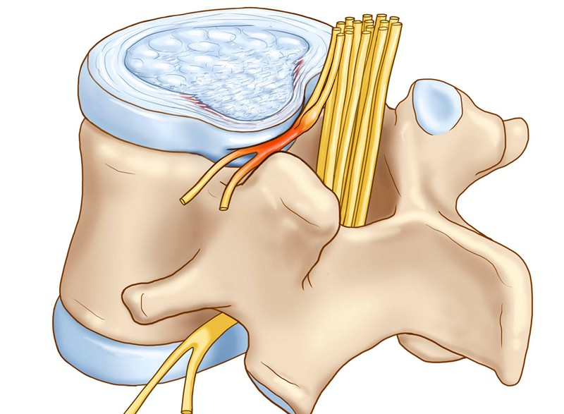 Умеренный унковертебральный артроз шейного отдела позвоночника
