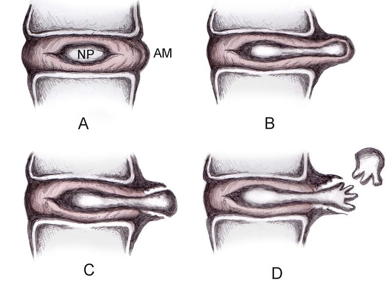 симптомы протрузии грудного отдела
