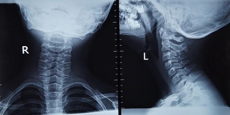 Родовая травма шейного отдела: симптомы, лечение, последствия