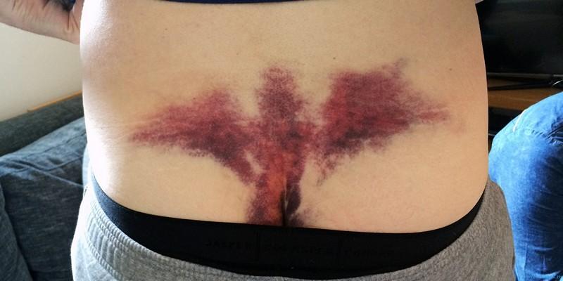 Симптомы перелом крестца