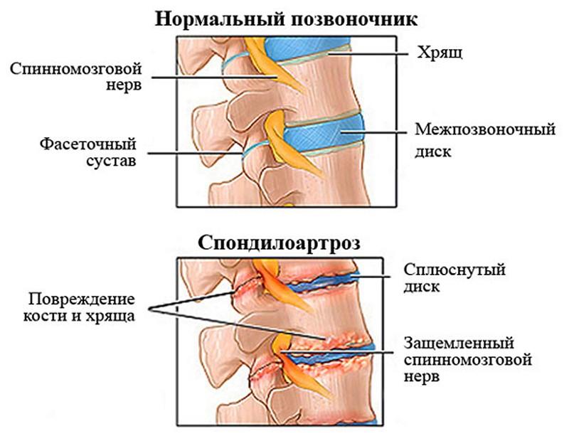 Левосторонний спондилоартроз поясничного отдела позвоночника