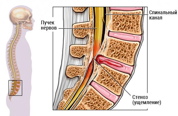 stenoz-pozvonochnogo-kanala-operacia