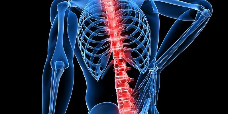 Мази при невралгии спины