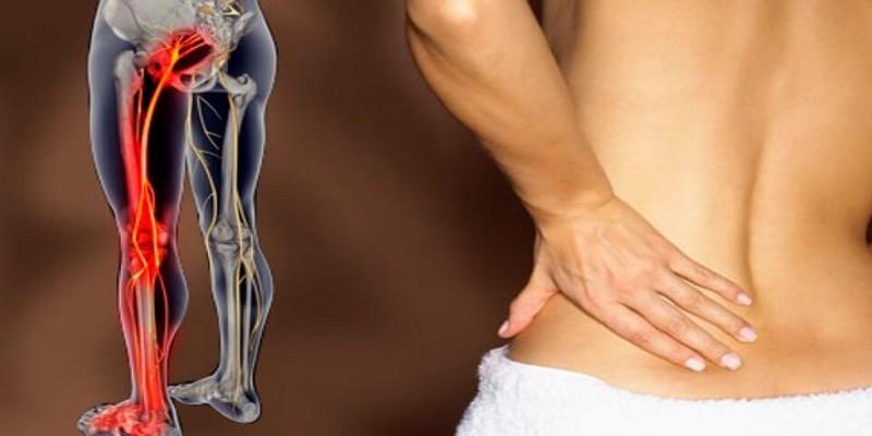 Боли в пояснице отдающие в ногу у женщин  Лечение боли в пояснице