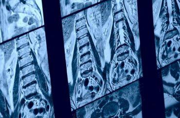 Остеопороз поясничного отдела позвоночника лечение