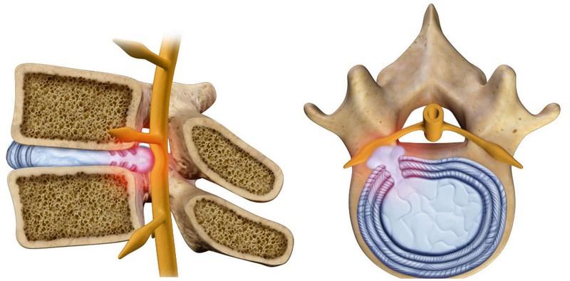 акупунктура для лечения грыж шейного отдела