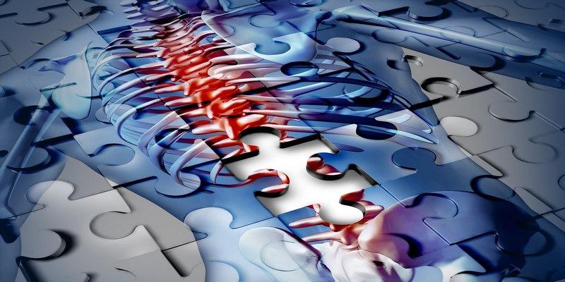 Грыжа шморля грудного отдела позвоночника диагностика и признаки лечение