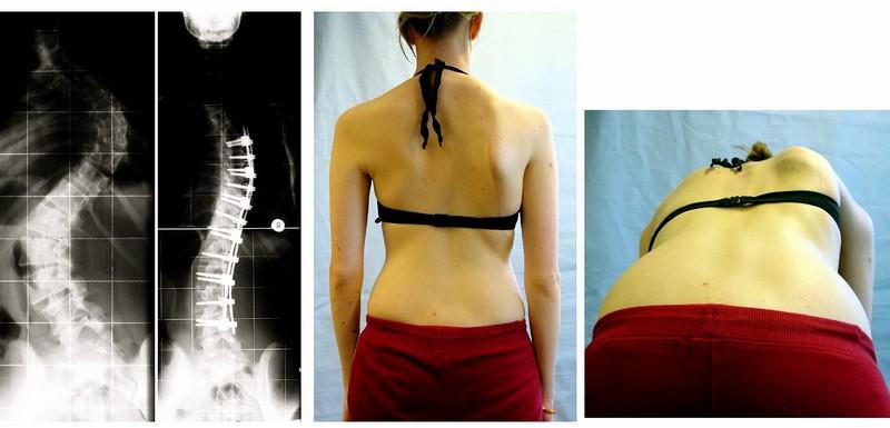 Лечение сколиоза грудного отдела позвонка