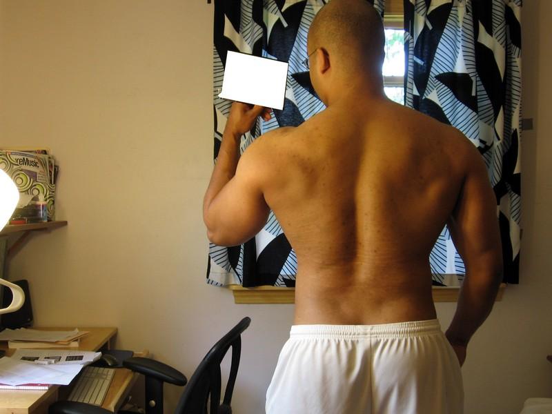 какие бывают стадии грудного сколиоза