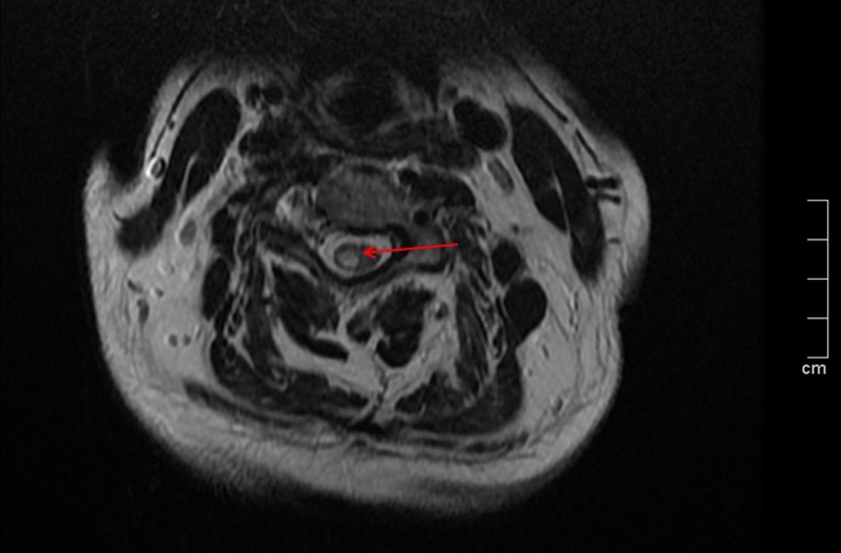 Инфаркт спинного мозга