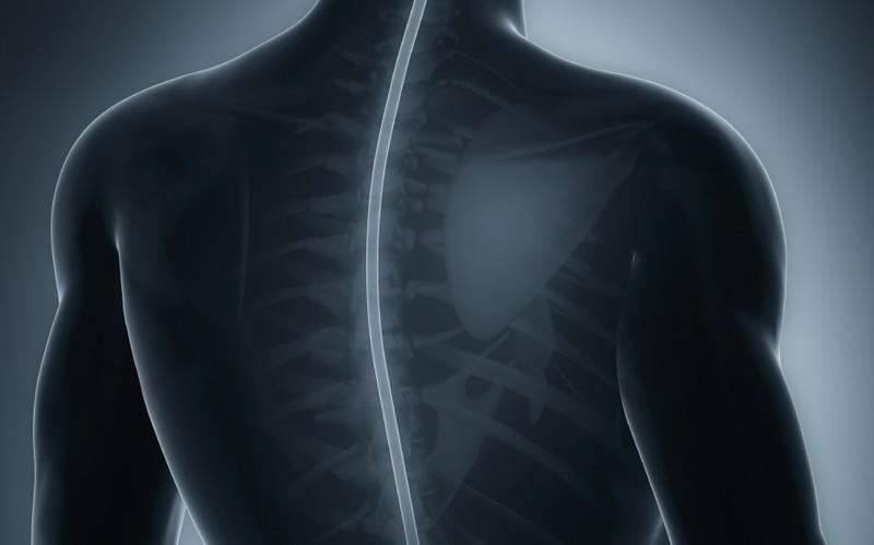 болевые проявления сдавливания спинного мозга