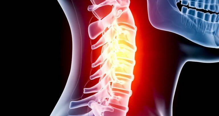 Симптомы нестабильности шейного отдела остеохондроз