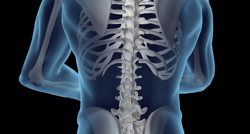 симптомы и последствия невриномы позвоночника