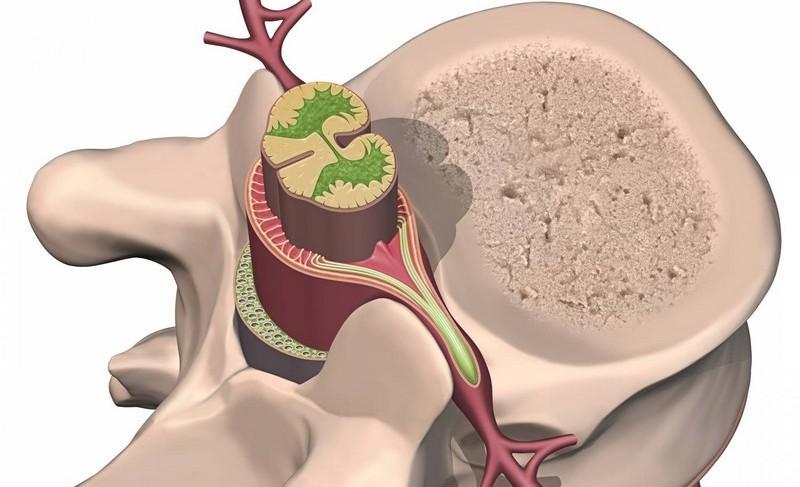 как проявляется опухоль спинного мозга