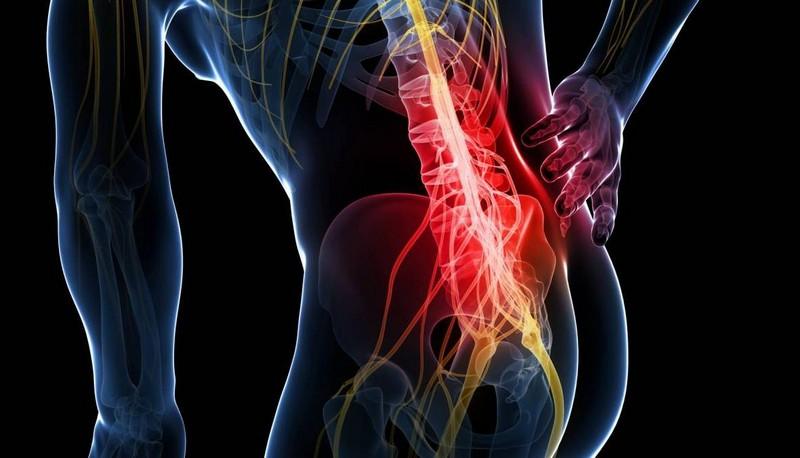 проявления опухолей позвоночника