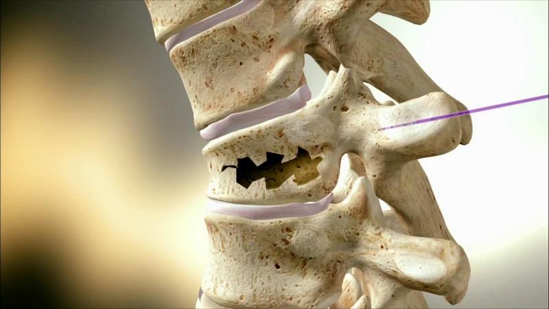 возможные причины перелома шейного отдела