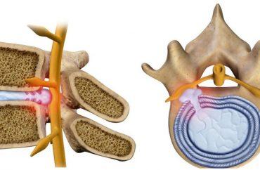 Анатомические особенности позвоночного столба